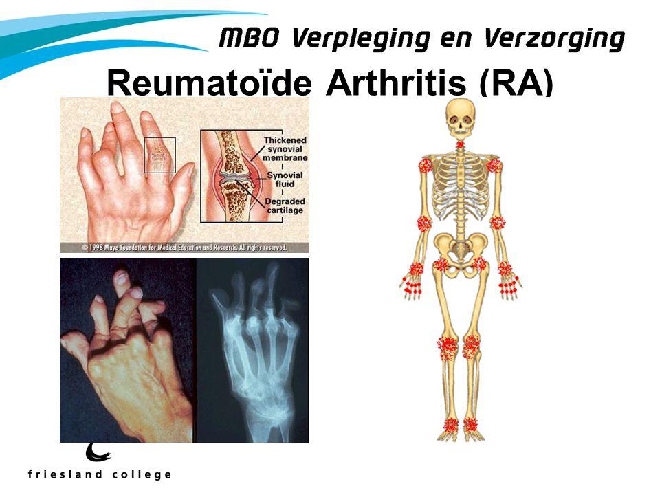 Reumatoïde Arthritis (RA)