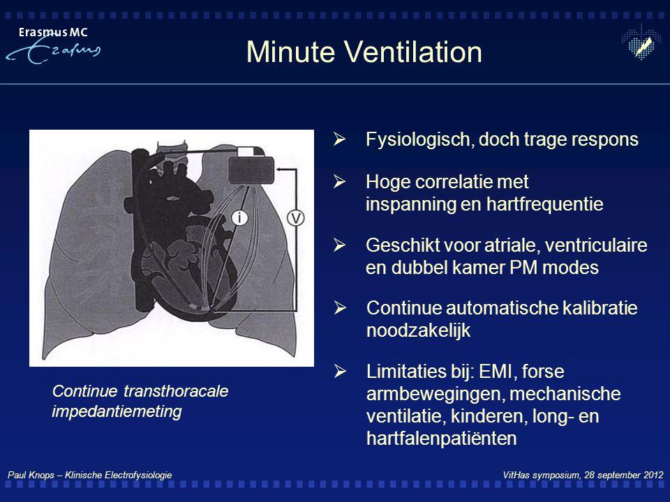 Paul Knops – Klinische Electrofysiologie VitHas symposium, 28 september 2012 Minute Ventilation  Continue automatische kalibratie noodzakelijk  Hoge