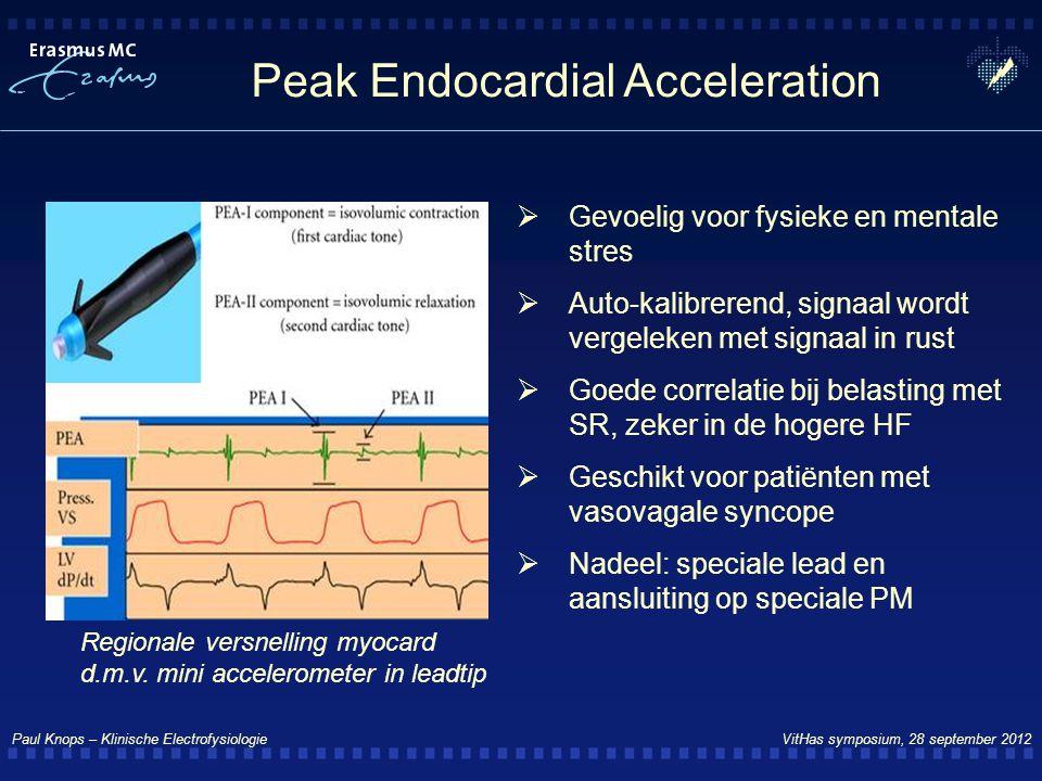 Paul Knops – Klinische Electrofysiologie VitHas symposium, 28 september 2012 Peak Endocardial Acceleration Regionale versnelling myocard d.m.v. mini a