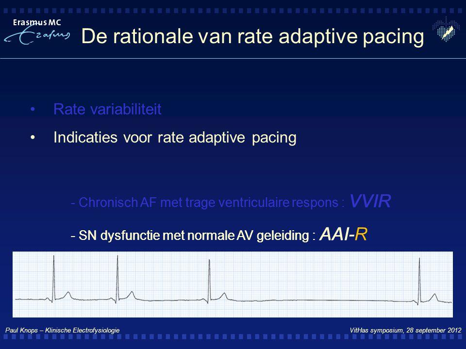 Paul Knops – Klinische Electrofysiologie VitHas symposium, 28 september 2012 De rationale van rate adaptive pacing Rate variabiliteit Indicaties voor