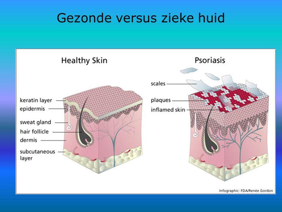 Gezonde versus zieke huid