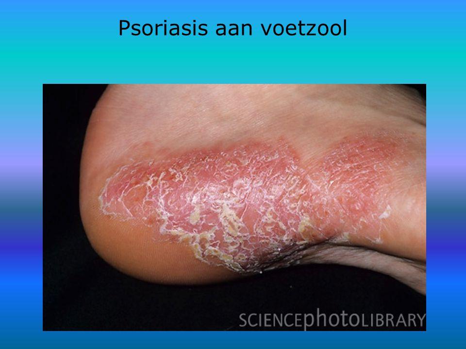 Psoriasis aan voetzool