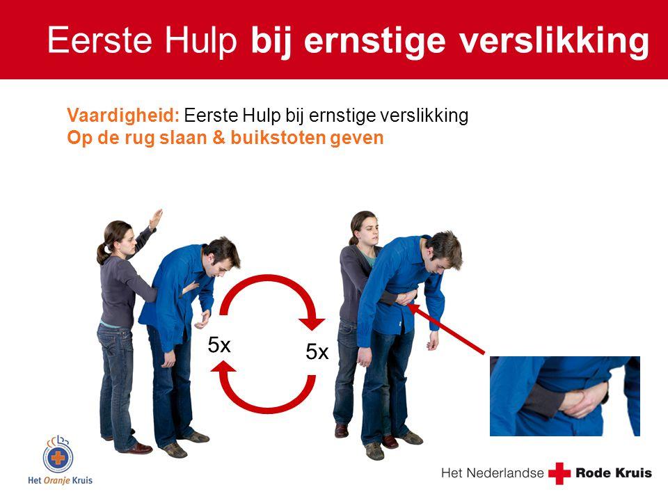 5x Vaardigheid: Eerste Hulp bij ernstige verslikking Op de rug slaan & buikstoten geven Eerste Hulp bij ernstige verslikking