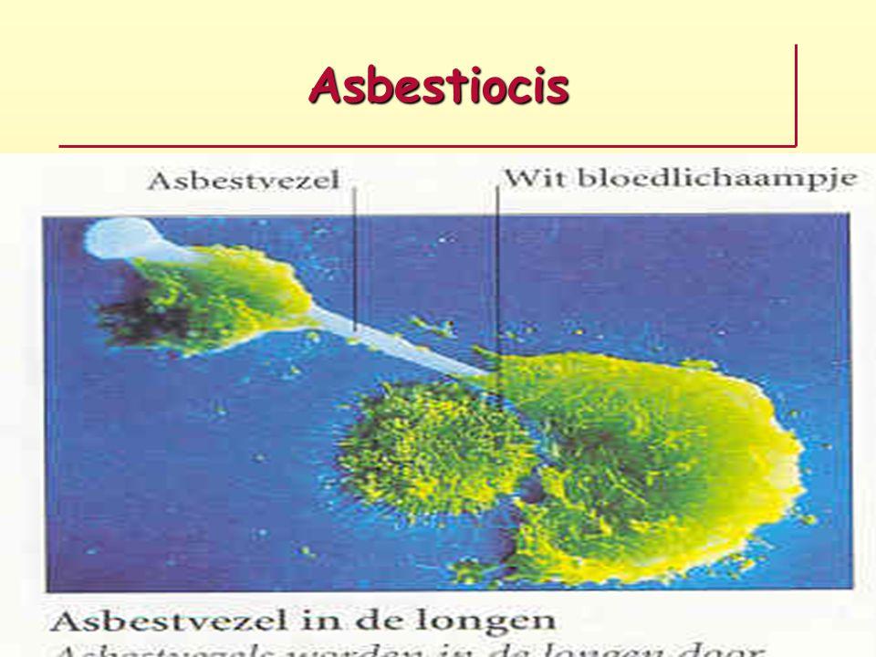 Asbestiocis