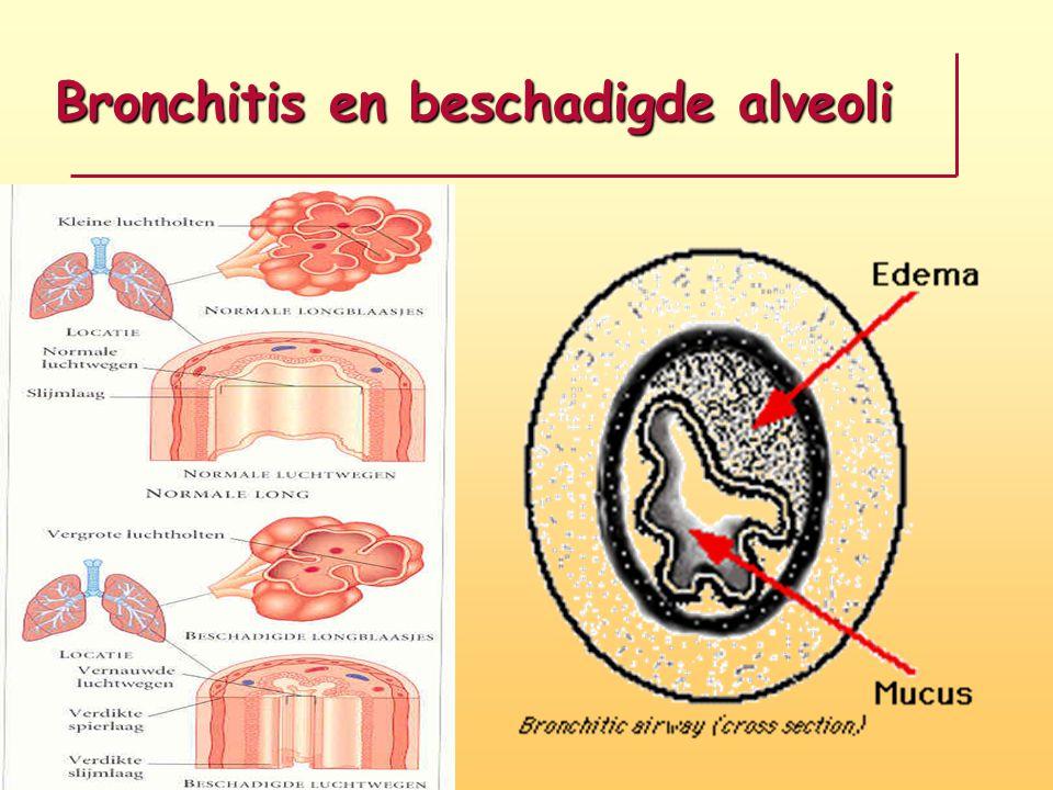 Bronchitis en beschadigde alveoli