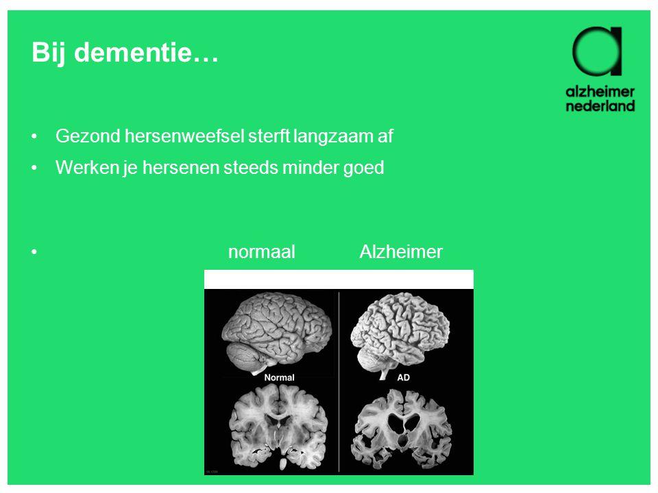 Bij dementie… Gezond hersenweefsel sterft langzaam af Werken je hersenen steeds minder goed normaalAlzheimer