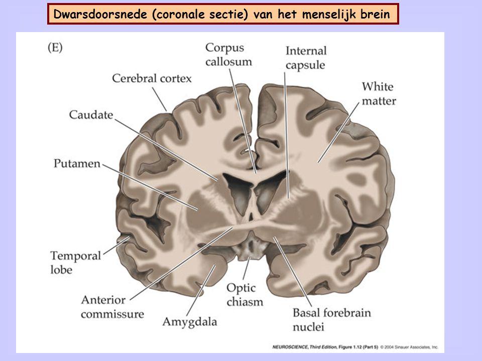 8 Dwarsdoorsnede (andere coronale sectie) van het menselijk brein