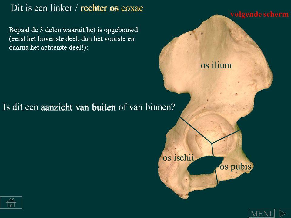 Dit is een linker / rechter os …….rechter os coxae Bepaal de 3 delen waaruit het is opgebouwd (eerst het bovenste deel, dan het voorste en daarna het
