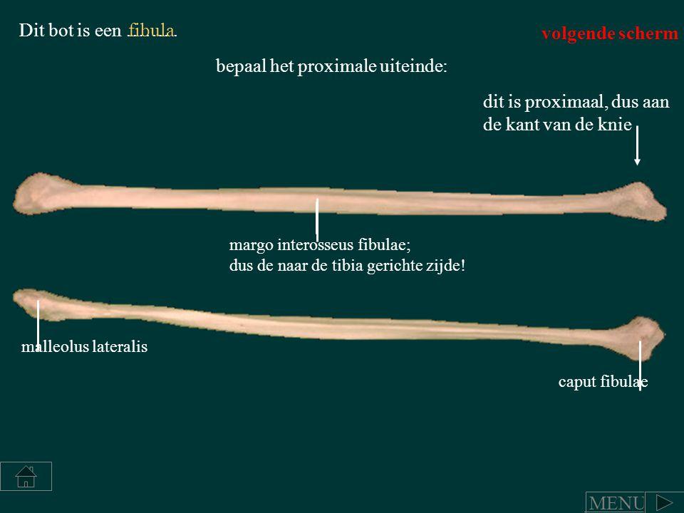 Dit bot is een ……..fibula bepaal het proximale uiteinde: dit is proximaal, dus aan de kant van de knie malleolus lateralis caput fibulae margo interos
