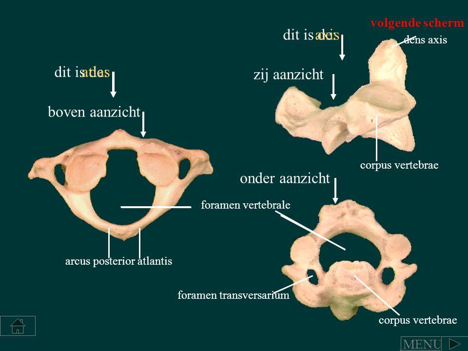 dit is de: atlas arcus posterior atlantis dens axis foramen transversarium corpus vertebrae foramen vertebrale corpus vertebrae axis zij aanzicht onde