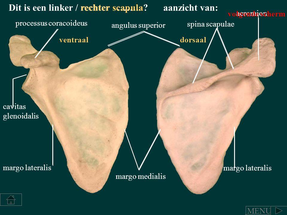 angulus superior spina scapulae acromion processus coracoideus cavitas glenoidalis margo lateralis margo medialis Dit is een linker / rechter …….. ?re