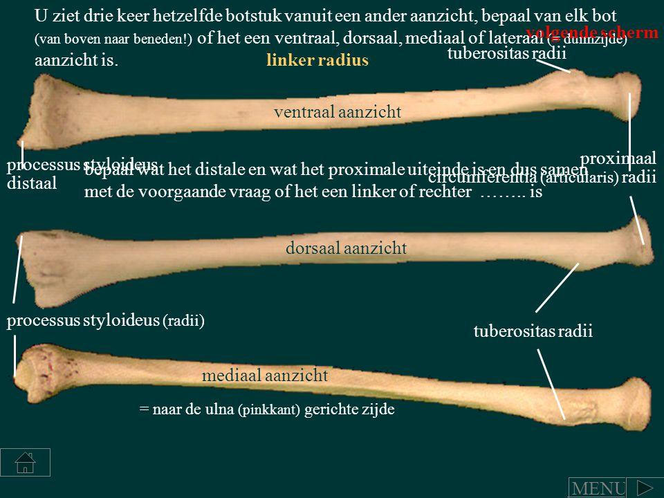 U ziet drie keer hetzelfde botstuk vanuit een ander aanzicht, bepaal van elk bot (van boven naar beneden!) of het een ventraal, dorsaal, mediaal of la