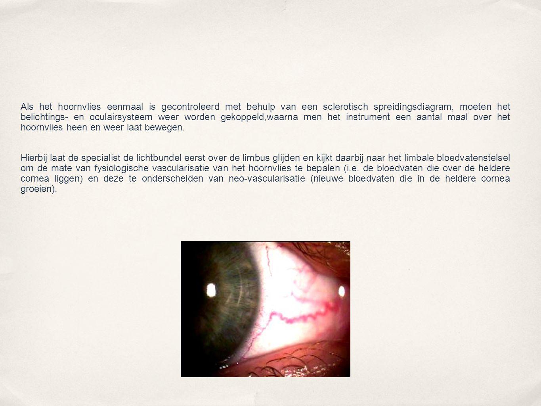 bij indirecte retro- belichting (afb.6), waarbij naast het belichte hoornvlies wordt gekeken.