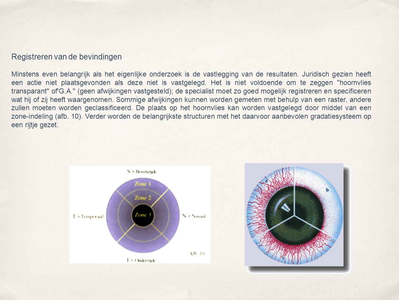 Oogleden en wimpers  OOGLIDONTSTEKING (BLEPHARITIS)  Spleetlamponderzoek: Diffuse lichtbundel, geringe vergroting, direct (lOx).