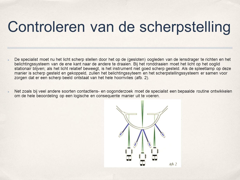 Spleetlampprocedure Algemeen overzicht:geringe vergroting, brede diffuse lichtbundel (afb.