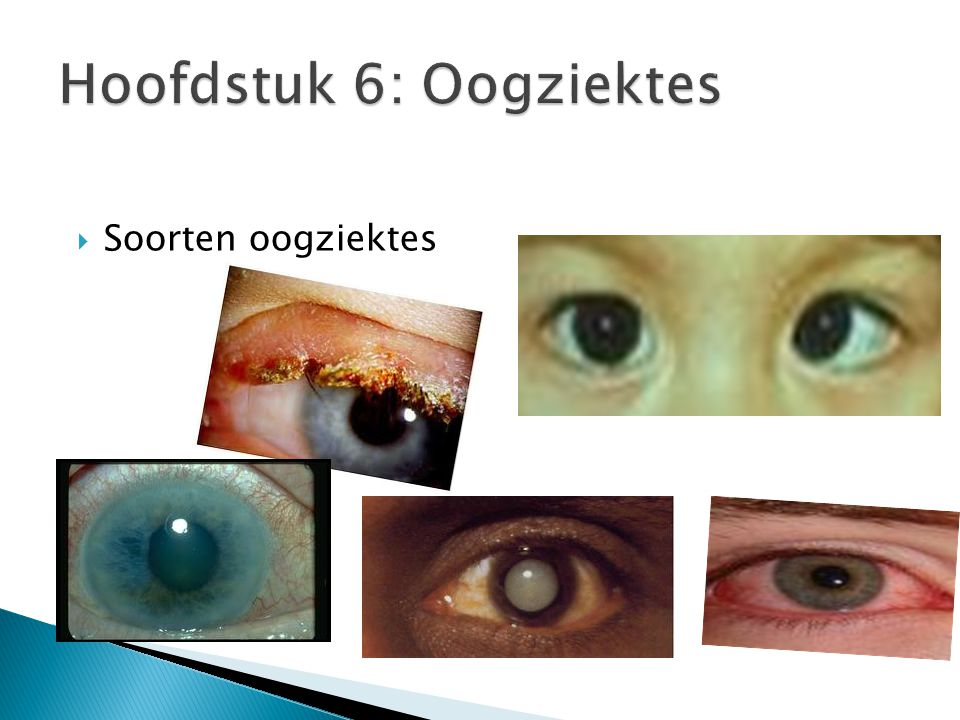  Soorten oogziektes