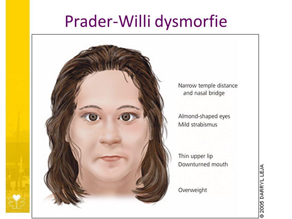 Prader-Willi dysmorfie