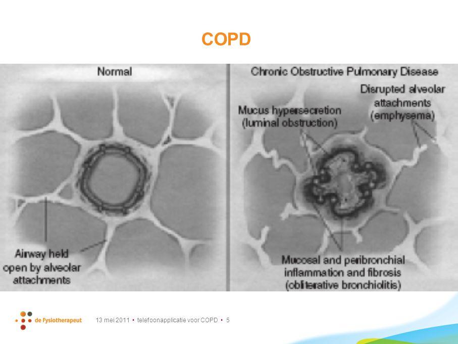 13 mei 2011 telefoonapplicatie voor COPD 26 sensorphone