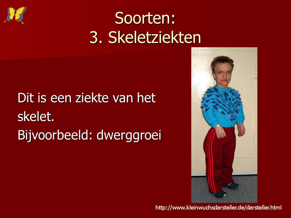 Soorten: 3. Skeletziekten Dit is een ziekte van het skelet. Bijvoorbeeld: dwerggroei http://www.kleinwuchsdarsteller.de/darsteller.html