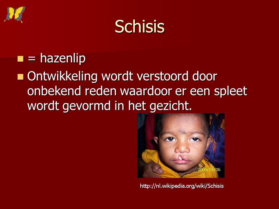 Schisis = hazenlip = hazenlip Ontwikkeling wordt verstoord door onbekend reden waardoor er een spleet wordt gevormd in het gezicht. Ontwikkeling wordt