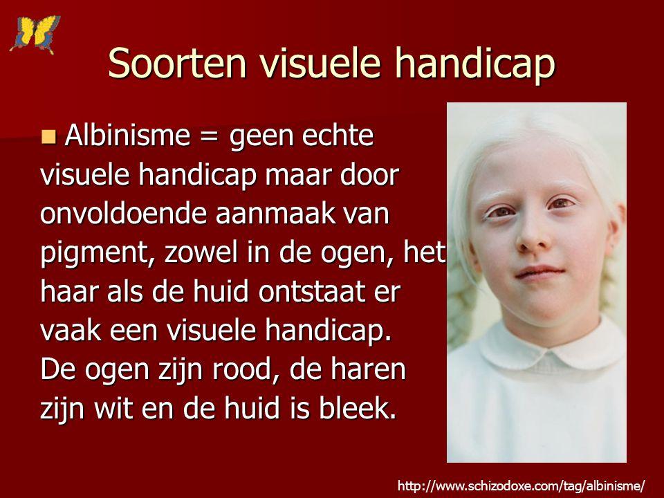 Soorten visuele handicap Albinisme = geen echte Albinisme = geen echte visuele handicap maar door onvoldoende aanmaak van pigment, zowel in de ogen, h