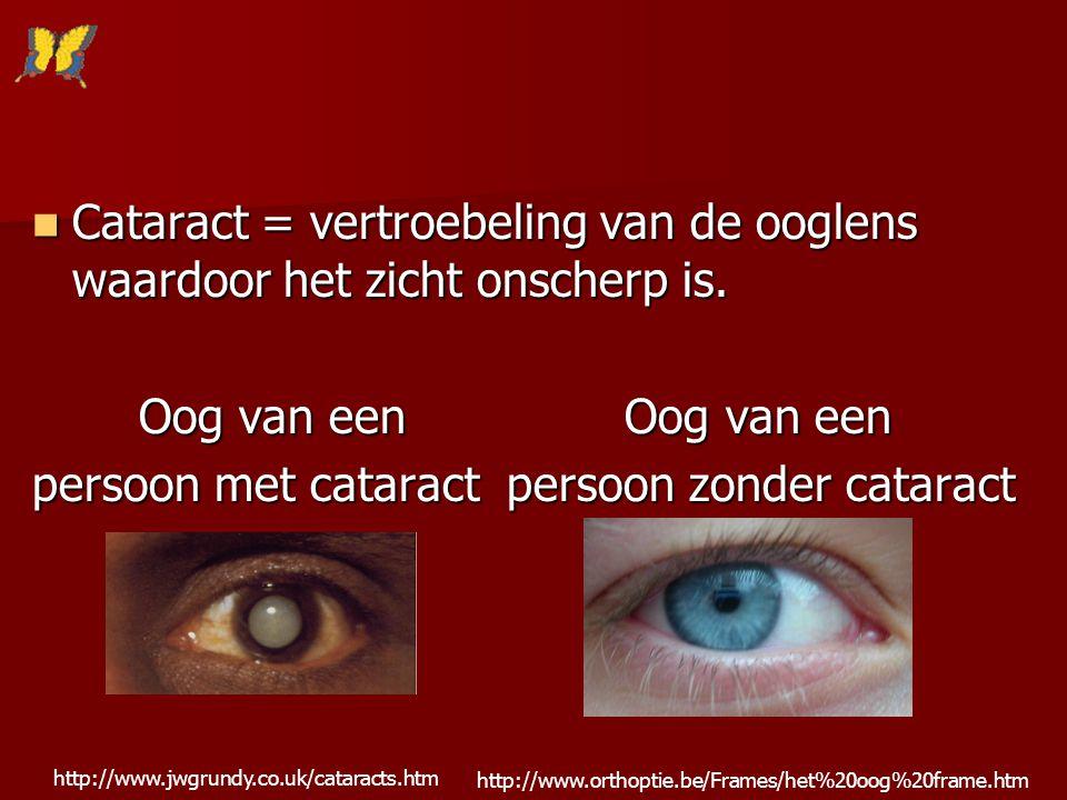 Cataract = vertroebeling van de ooglens waardoor het zicht onscherp is. Cataract = vertroebeling van de ooglens waardoor het zicht onscherp is. Oog va