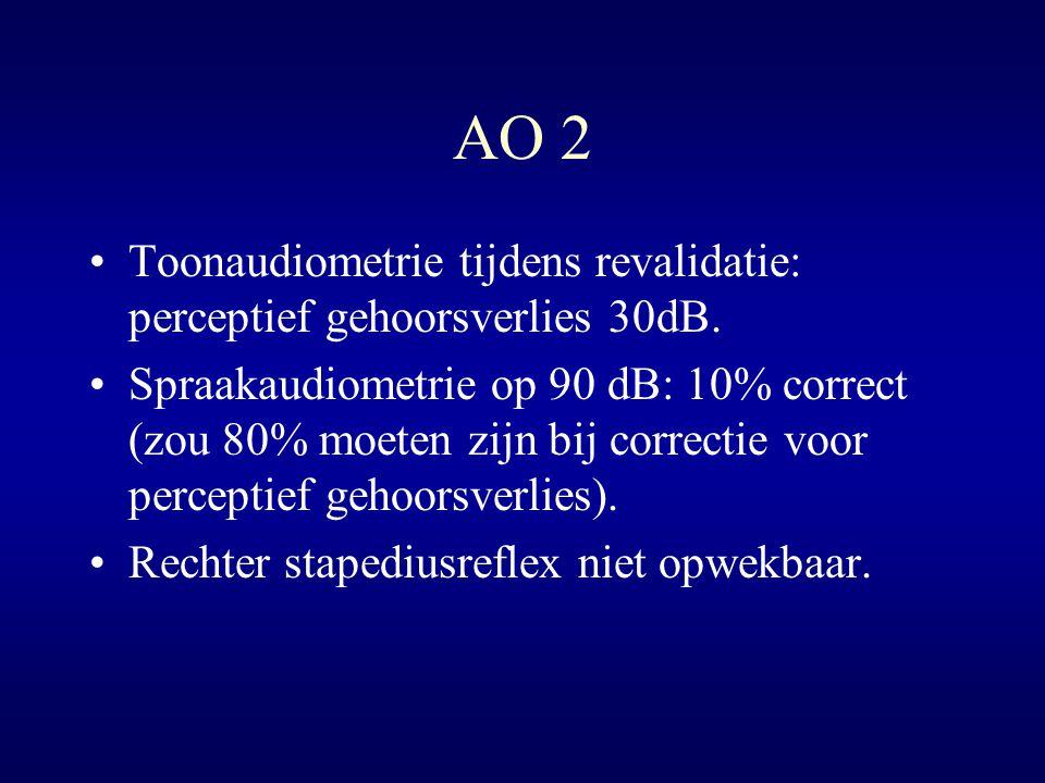 AO 2 Toonaudiometrie tijdens revalidatie: perceptief gehoorsverlies 30dB. Spraakaudiometrie op 90 dB: 10% correct (zou 80% moeten zijn bij correctie v