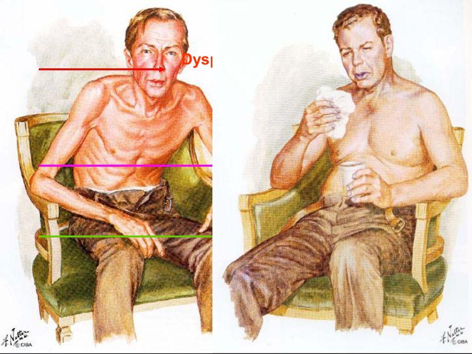 Exacerbaties en ziekteprogressie Hansel et al. Lancet 2009