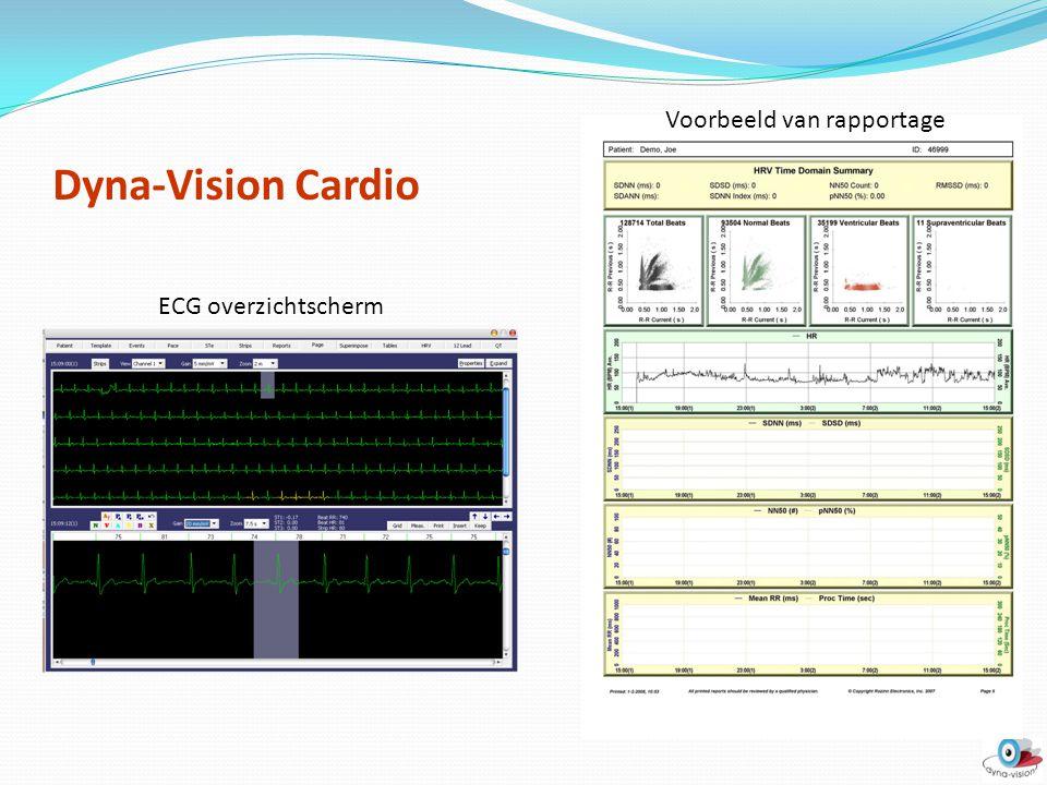 Dyna-Vision Cardio ECG overzichtscherm Voorbeeld van rapportage