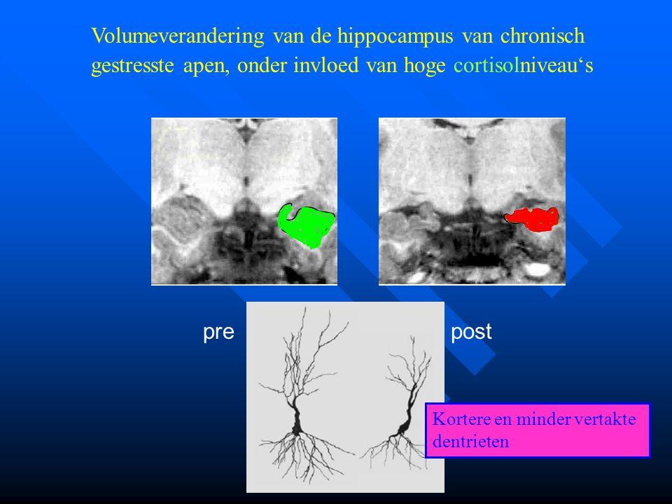 Volumeverandering van de hippocampus van chronisch gestresste apen, onder invloed van hoge cortisolniveau's prepost Kortere en minder vertakte dentrie