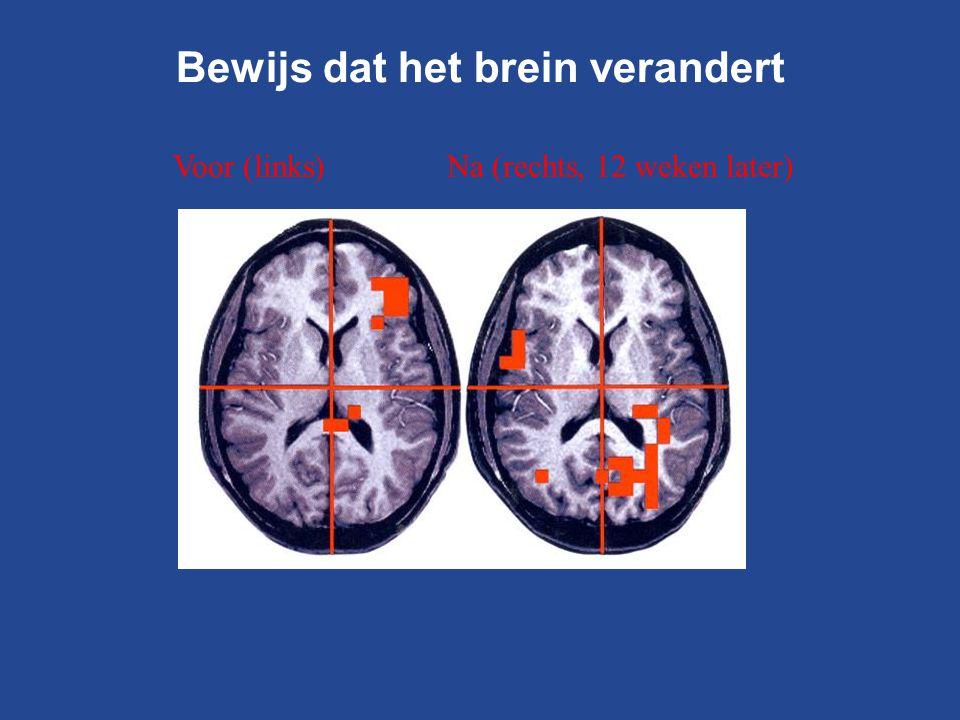 Voor (links) Na (rechts, 12 weken later) Bewijs dat het brein verandert