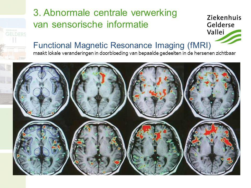 3. Abnormale centrale verwerking van sensorische informatie Functional Magnetic Resonance Imaging (fMRI) maakt lokale veranderingen in doorbloeding va