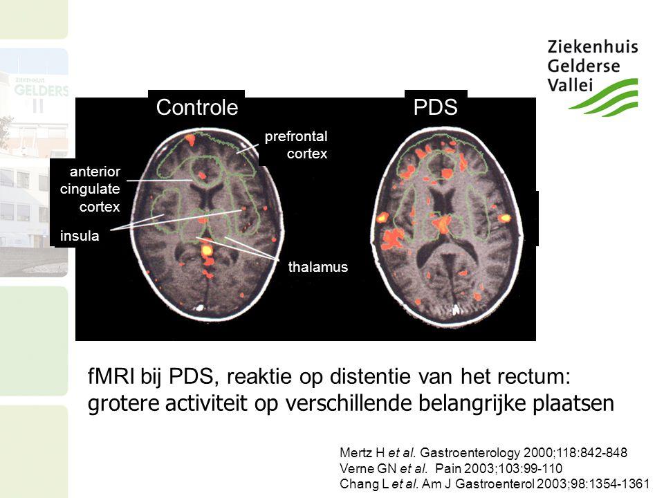 PDSControle prefrontal cortex thalamus anterior cingulate cortex insula fMRI bij PDS, reaktie op distentie van het rectum: grotere activiteit op versc