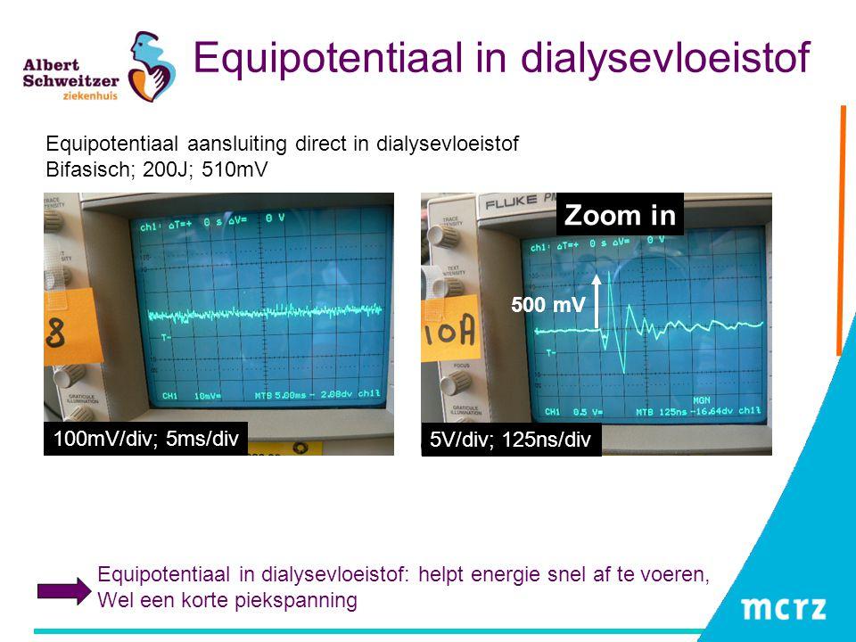Equipotentiaal in dialysevloeistof Equipotentiaal aansluiting direct in dialysevloeistof Bifasisch; 200J; 510mV Equipotentiaal in dialysevloeistof: he