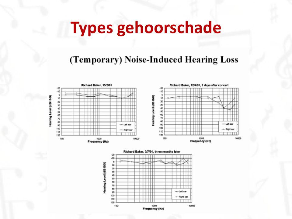 2.Tinnitus – Gesuis, gepiep, gerinkel, … 3. Hyperacusis – Alle geluiden als pijnlijk ervaren 4.