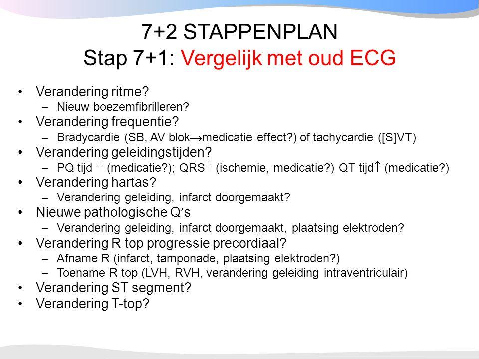 7+2 STAPPENPLAN Stap 7+1: Vergelijk met oud ECG Verandering ritme? – Nieuw boezemfibrilleren? Verandering frequentie? – Bradycardie (SB, AV blok  med