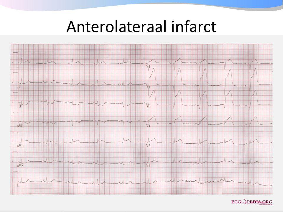 Anterolateraal infarct