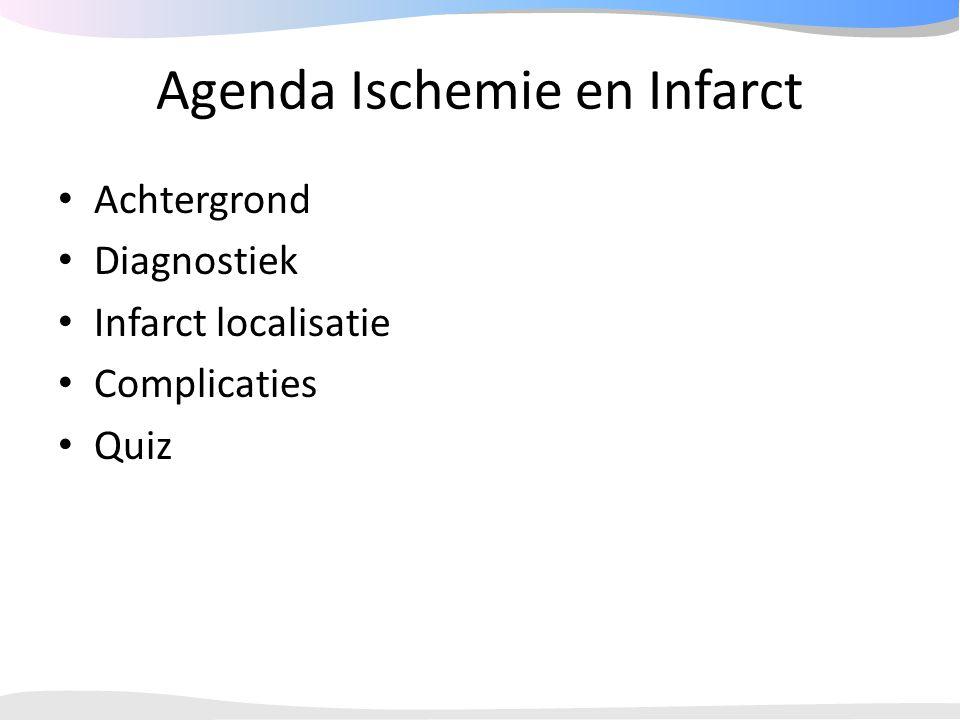 Agenda Ischemie en Infarct Achtergrond Diagnostiek Infarct localisatie Complicaties Quiz