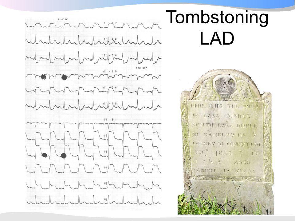 Tombstoning LAD