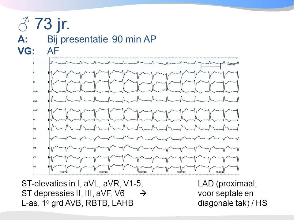♂ 73 jr. A: Bij presentatie 90 min AP VG: AF ST-elevaties in I, aVL, aVR, V1-5, LAD (proximaal; ST depressies II, III, aVF, V6  voor septale en L-as,