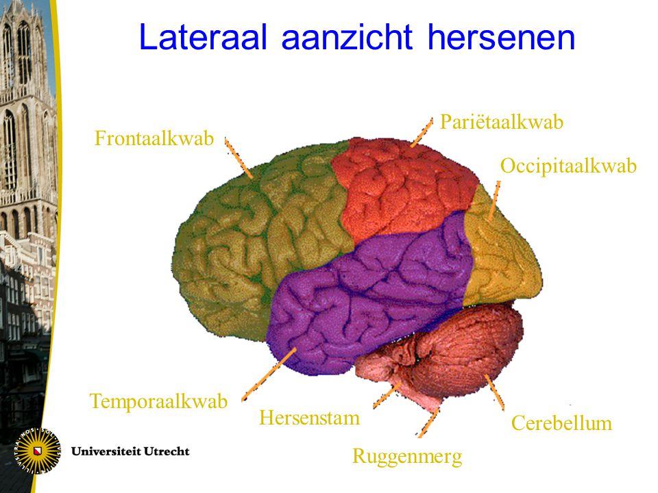 Lateraal aanzicht hersenen Frontaalkwab Pariëtaalkwab Occipitaalkwab Cerebellum Temporaalkwab Hersenstam Ruggenmerg