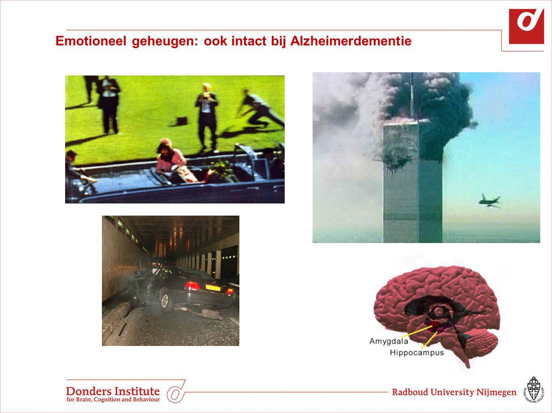 Emotioneel geheugen: ook intact bij Alzheimerdementie