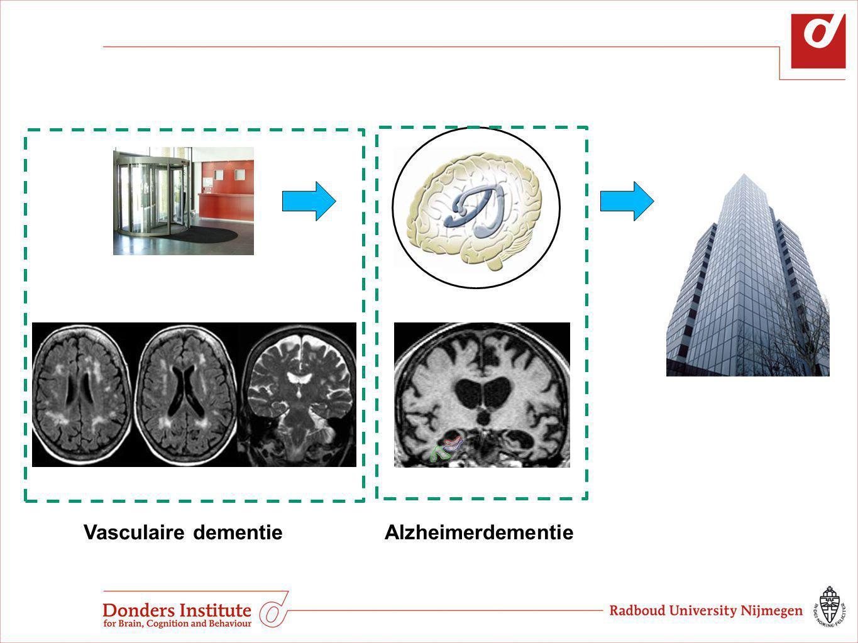 Vasculaire dementie Alzheimerdementie Vasculaire dementieAlzheimerdementie