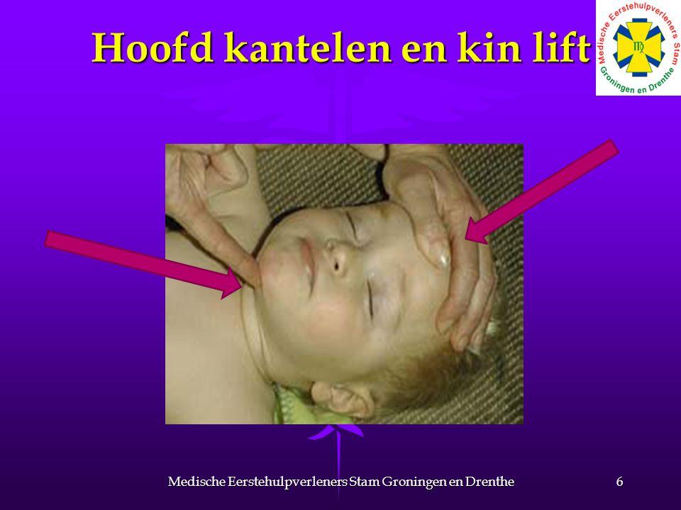 5 maal beademen Over mond en neus bij baby s en heel kleine kinderen Over mond en neus bij baby s en heel kleine kinderen 7Medische Eerstehulpverleners Stam Groningen en Drenthe