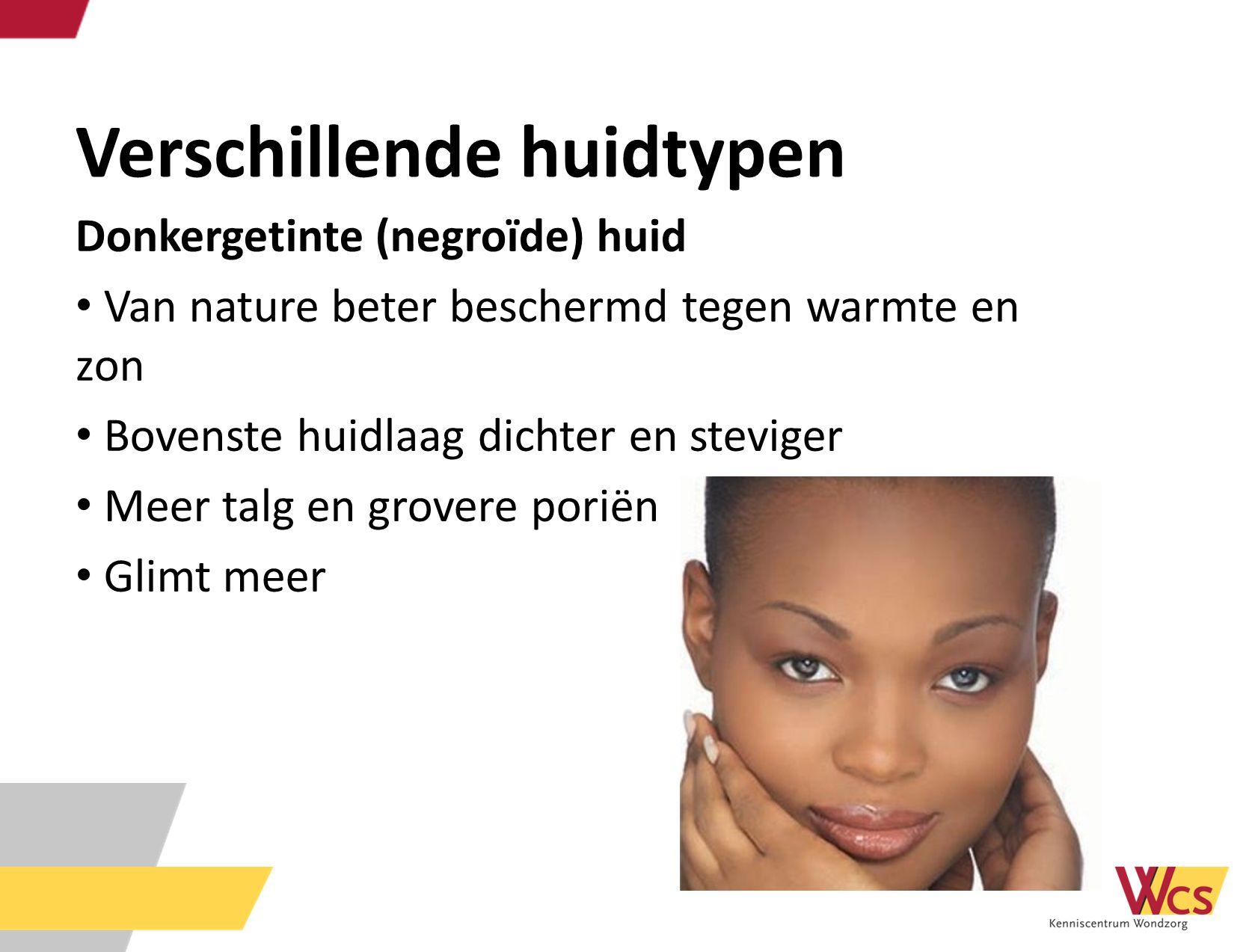 Verschillende huidtypen Donkergetinte (negroïde) huid Van nature beter beschermd tegen warmte en zon Bovenste huidlaag dichter en steviger Meer talg e