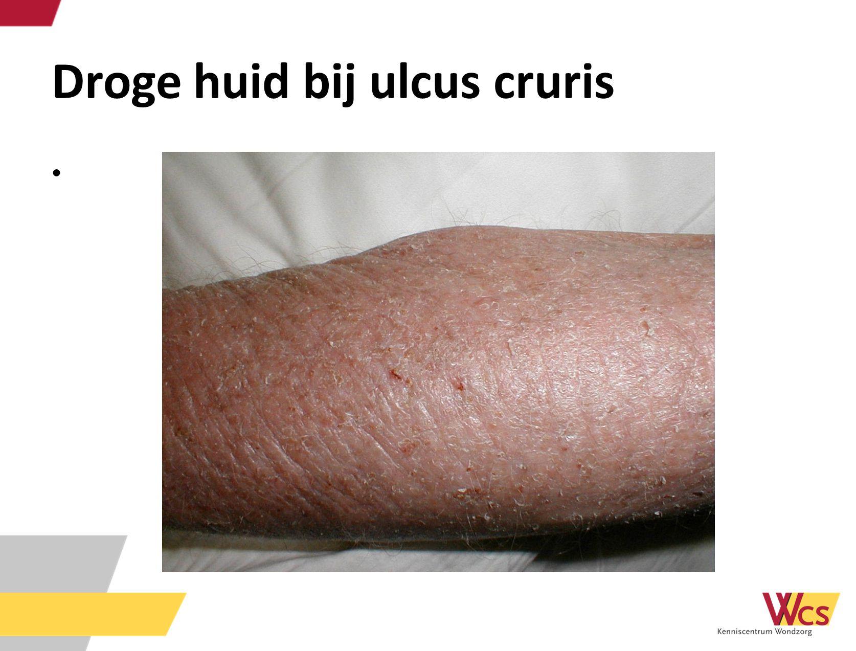 Droge huid bij ulcus cruris