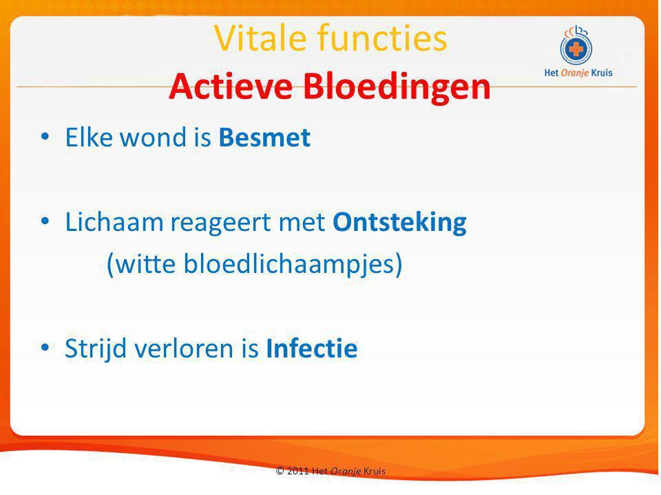 Vitale functies Actieve Bloedingen Elke wond is Besmet Lichaam reageert met Ontsteking (witte bloedlichaampjes) Strijd verloren is Infectie © 2011 Het