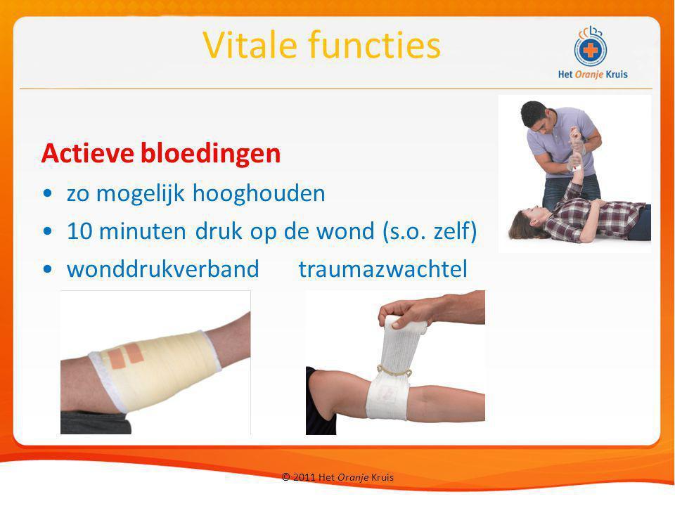 Actieve bloedingen zo mogelijk hooghouden 10 minuten druk op de wond (s.o. zelf) wonddrukverband traumazwachtel Vitale functies