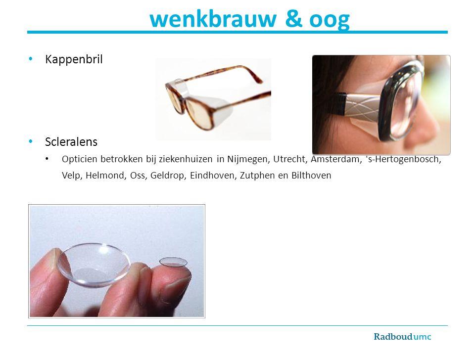 Kappenbril Scleralens Opticien betrokken bij ziekenhuizen in Nijmegen, Utrecht, Amsterdam, 's-Hertogenbosch, Velp, Helmond, Oss, Geldrop, Eindhoven, Z