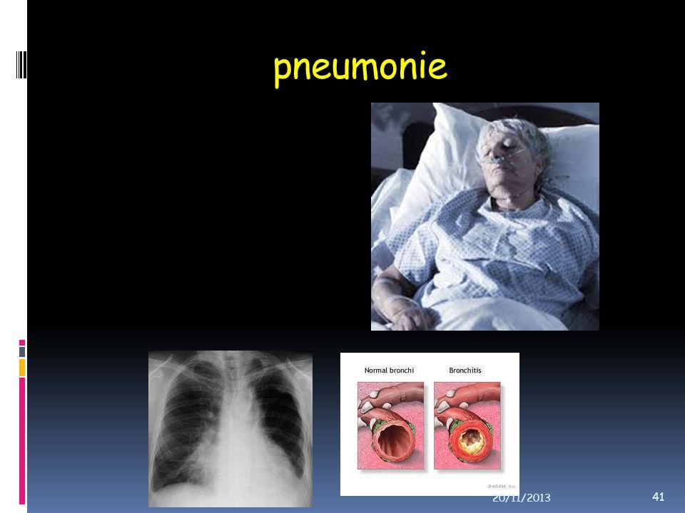 pneumonie 20/11/2013 41
